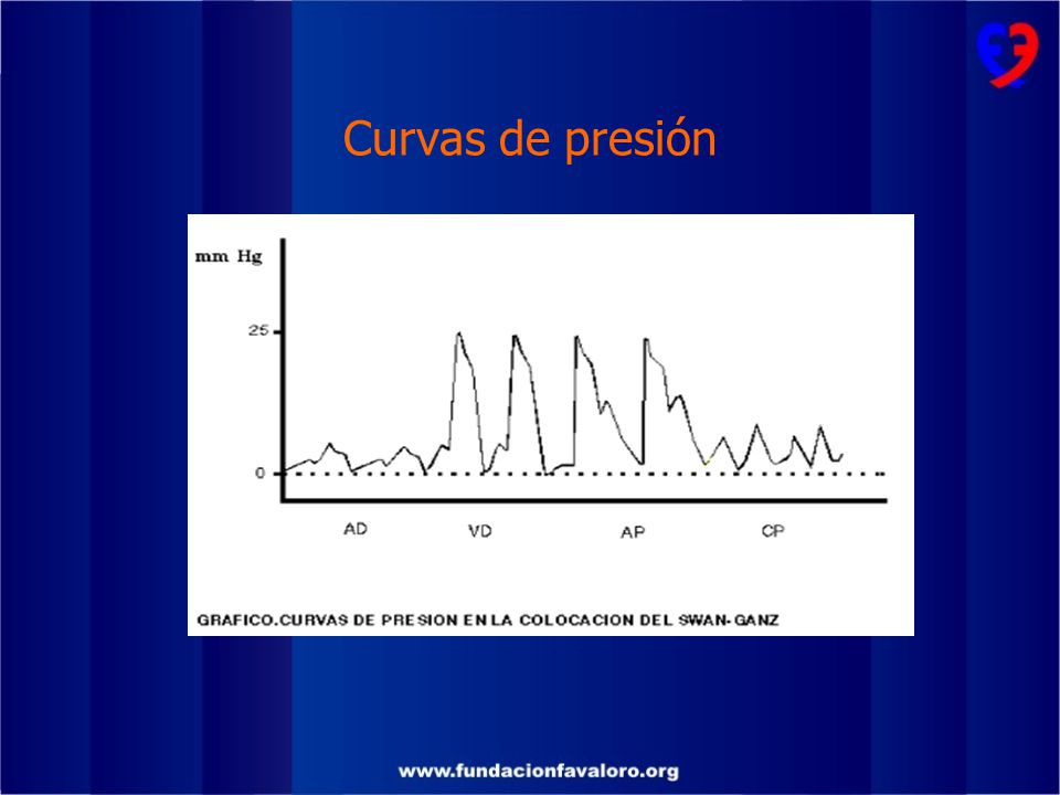 Curvas de presión