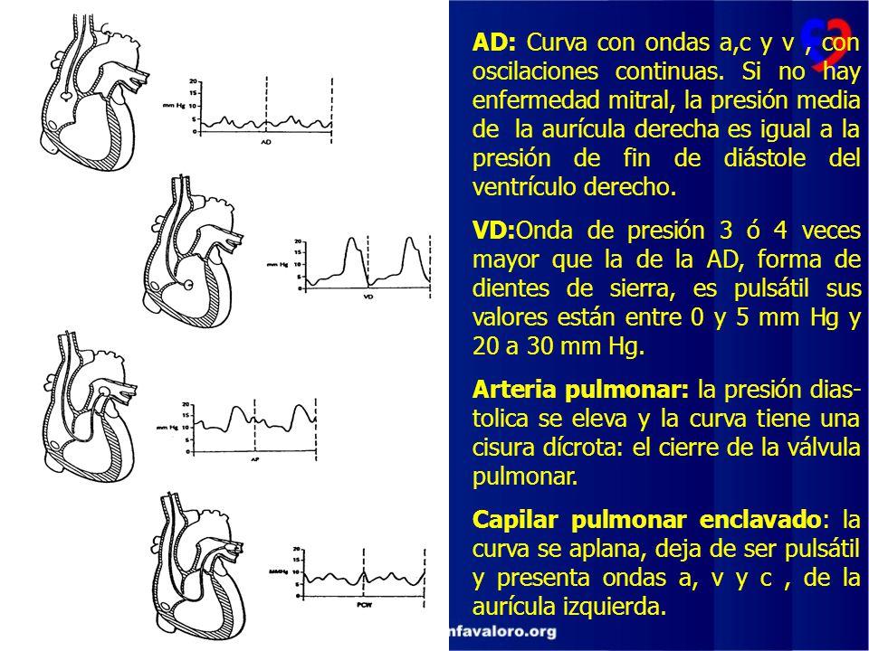 AD: Curva con ondas a,c y v , con oscilaciones continuas