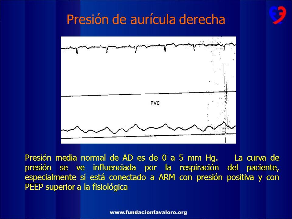 Presión de aurícula derecha
