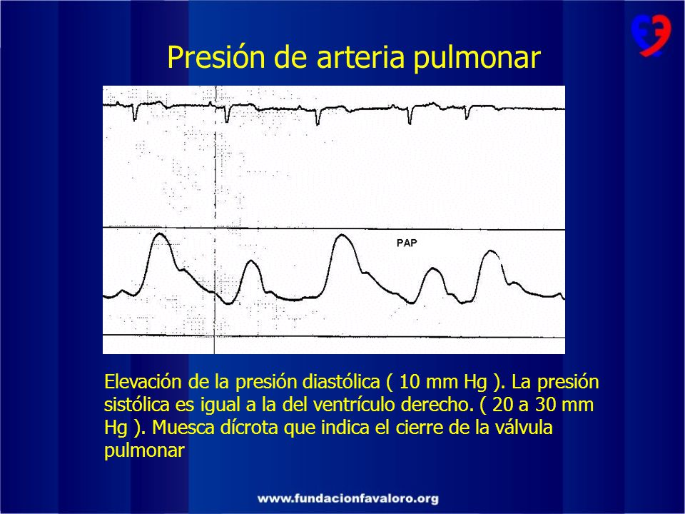 Presión de arteria pulmonar