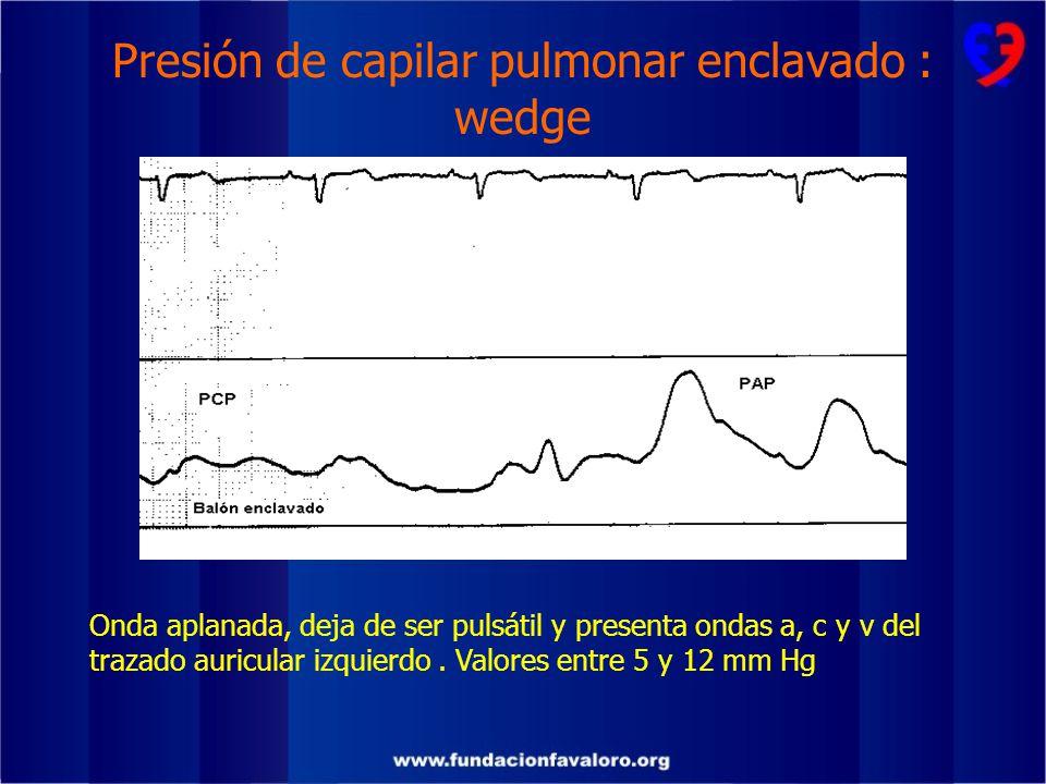 Presión de capilar pulmonar enclavado : wedge