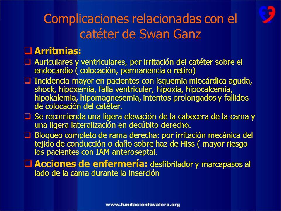 Complicaciones relacionadas con el catéter de Swan Ganz