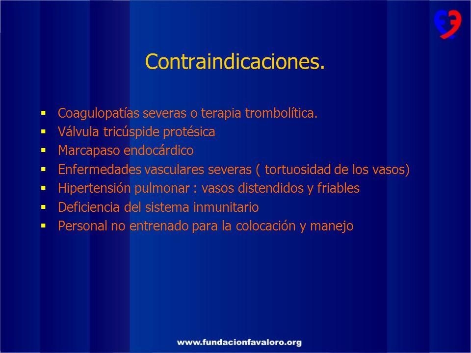 Contraindicaciones. Coagulopatías severas o terapia trombolítica.