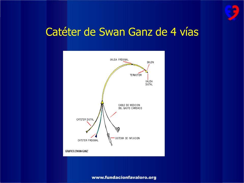 Catéter de Swan Ganz de 4 vías