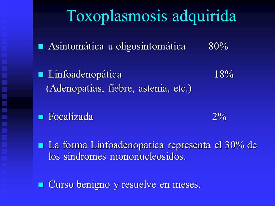 Toxoplasmosis adquirida