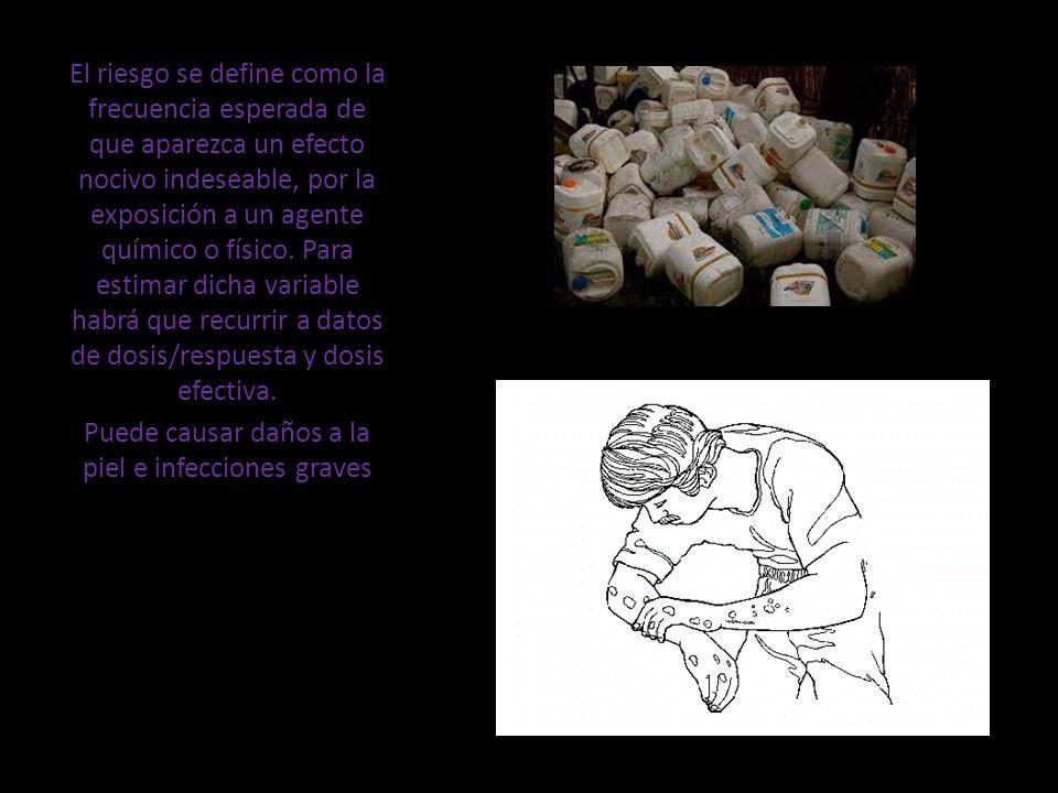 Puede causar daños a la piel e infecciones graves