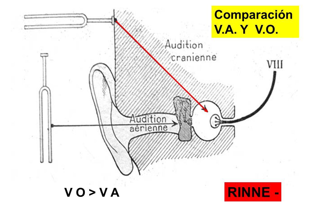 Comparación V.A. Y V.O. V O > V A RINNE -
