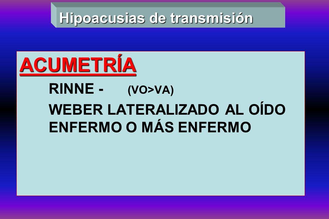 ACUMETRÍA Hipoacusias de transmisión RINNE - (VO>VA)