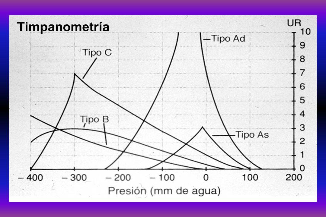 Timpanometría