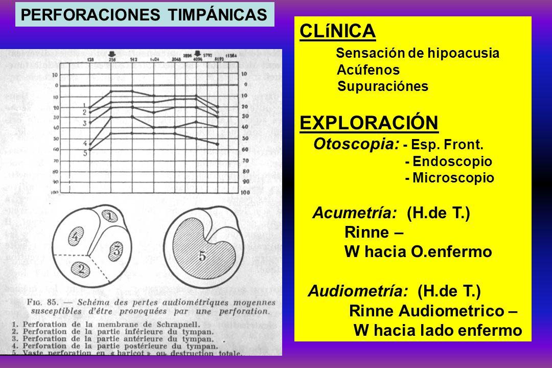 CLíNICA EXPLORACIÓN PERFORACIONES TIMPÁNICAS Sensación de hipoacusia