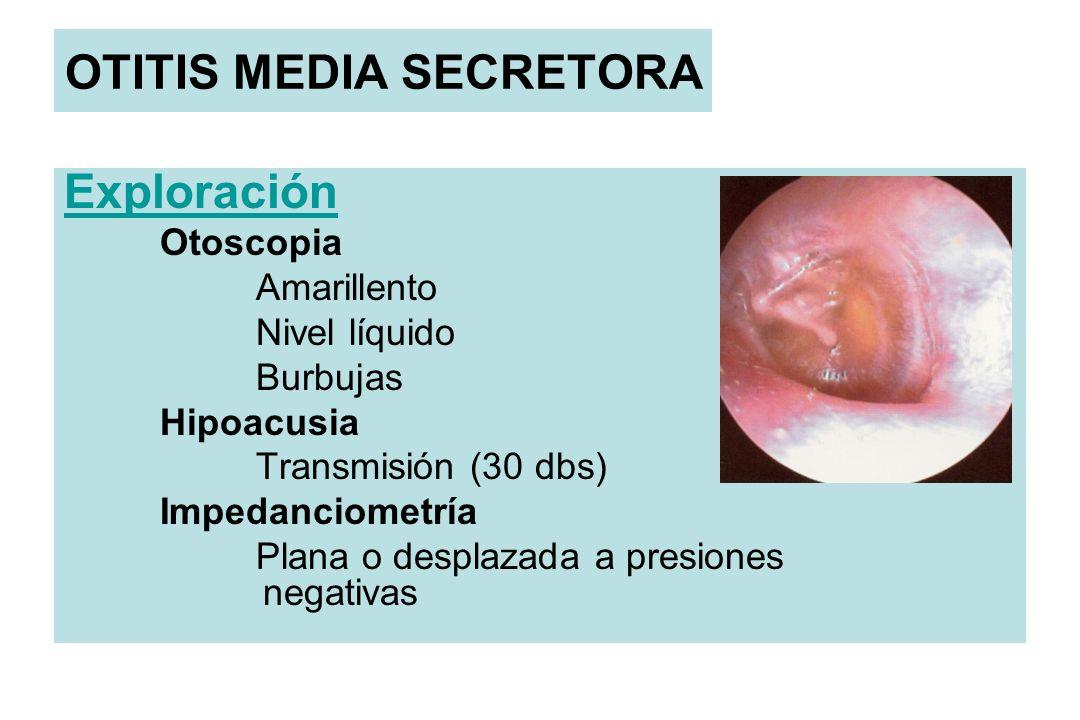 OTITIS MEDIA SECRETORA