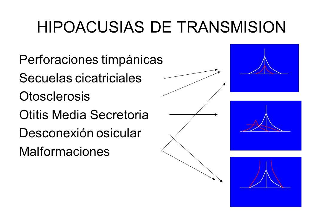 HIPOACUSIAS DE TRANSMISION