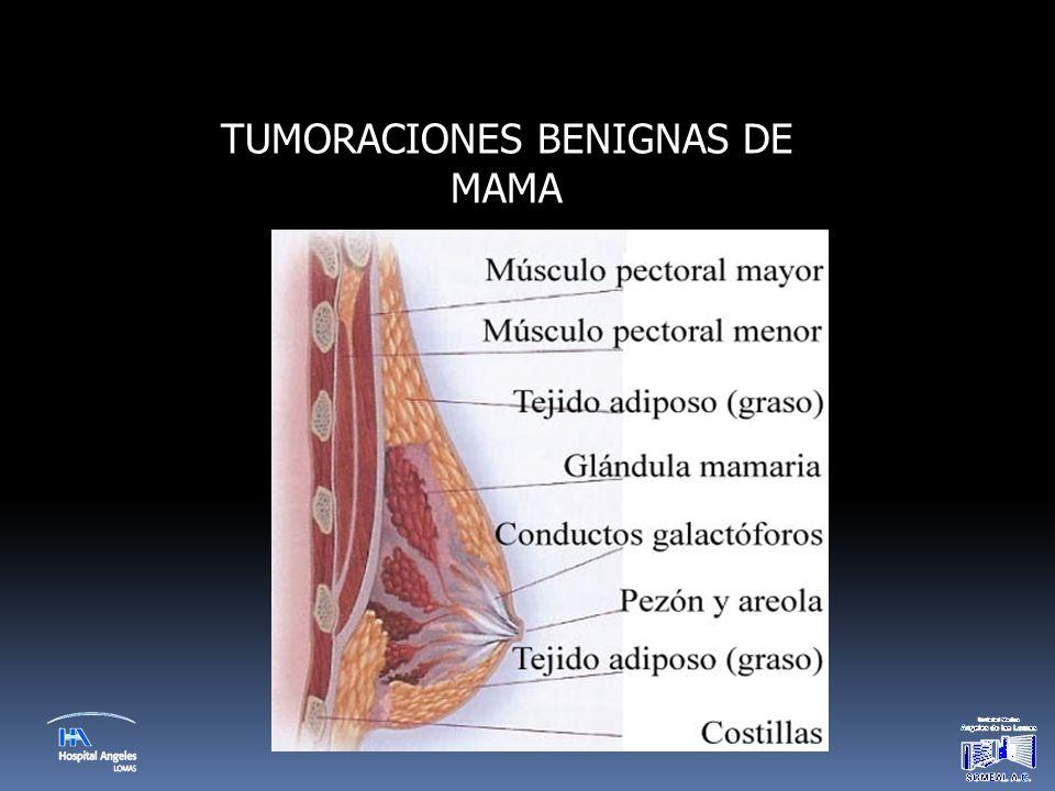 TUMORACIONES BENIGNAS DE MAMA