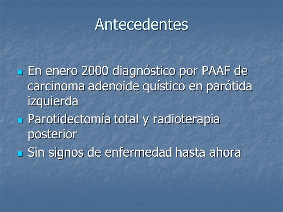 Antecedentes En enero 2000 diagnóstico por PAAF de carcinoma adenoide quístico en parótida izquierda.