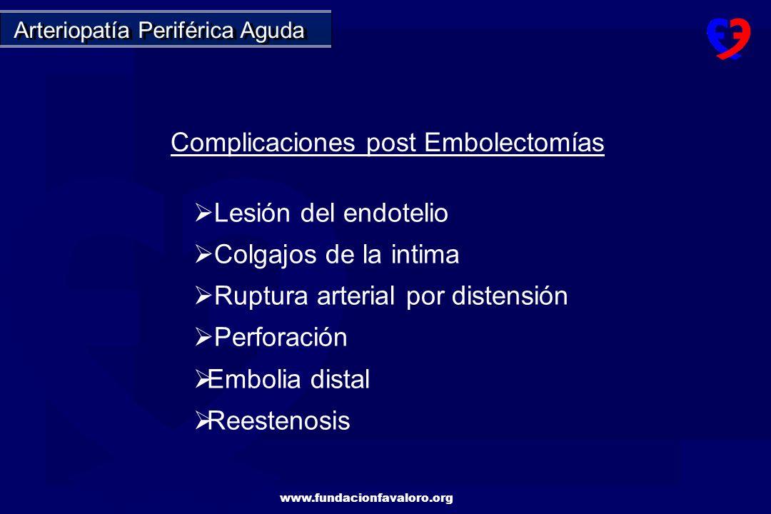 Complicaciones post Embolectomías