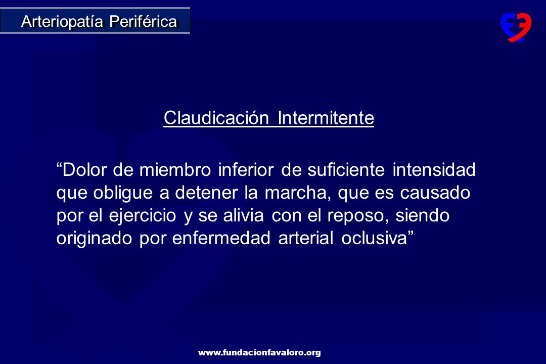 Claudicación Intermitente