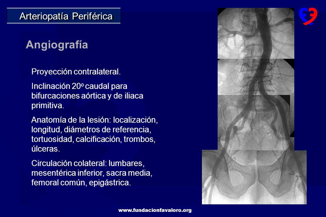 Angiografía Arteriopatía Periférica Proyección contralateral.