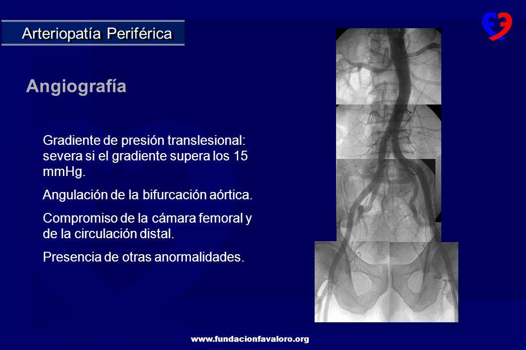 Angiografía Arteriopatía Periférica