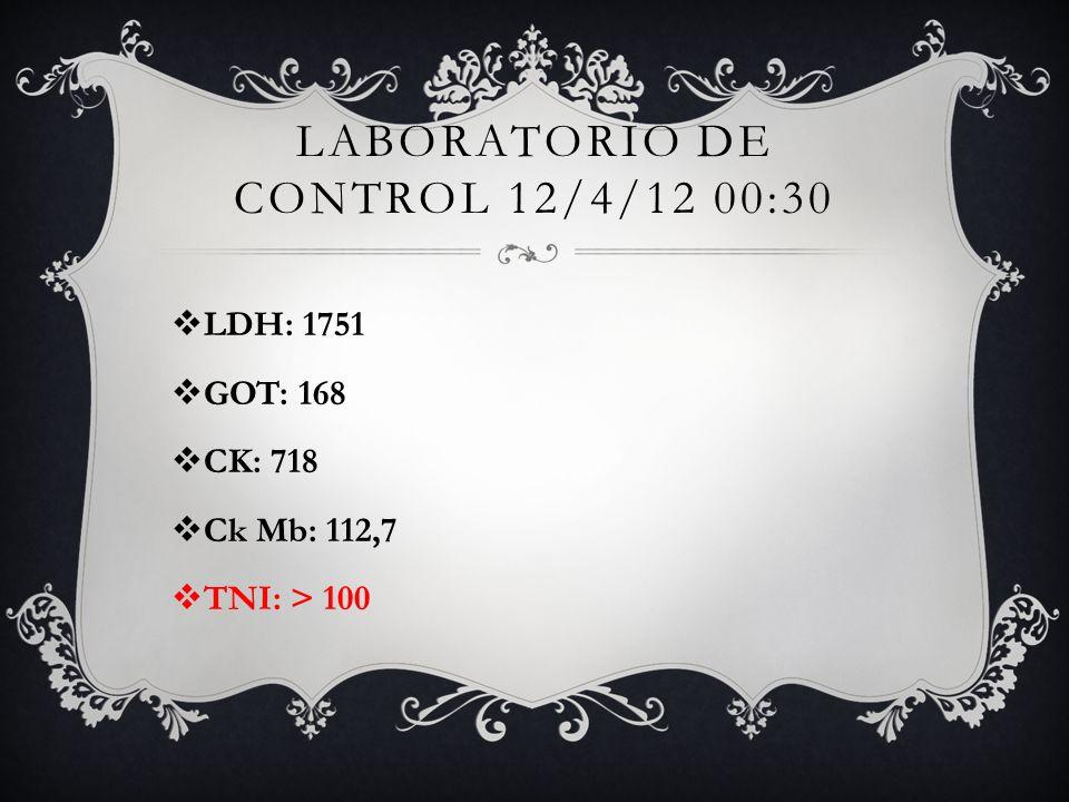 Laboratorio de control 12/4/12 00:30