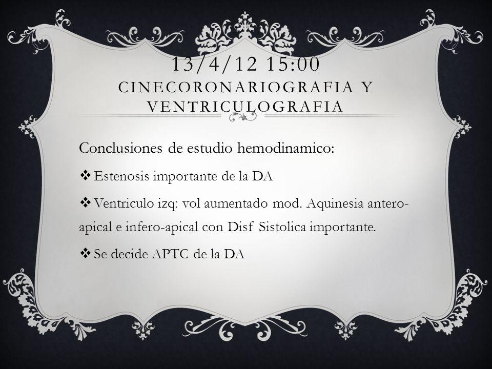 13/4/12 15:00 cinecoronariografia y ventriculografia