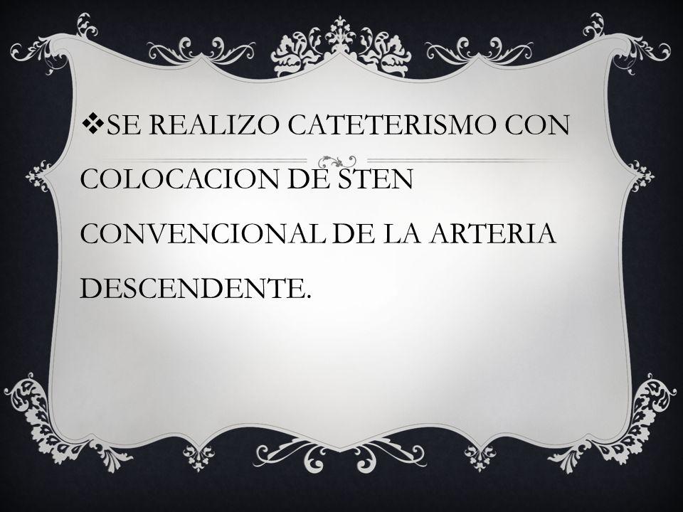 SE REALIZO CATETERISMO CON COLOCACION DE STEN CONVENCIONAL DE LA ARTERIA DESCENDENTE.