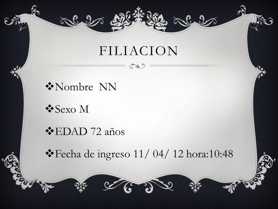 Filiacion Nombre NN Sexo M EDAD 72 años