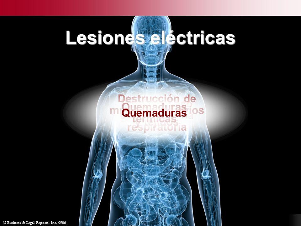 Lesiones eléctricas Destrucción de músculos, nervios y tejidos