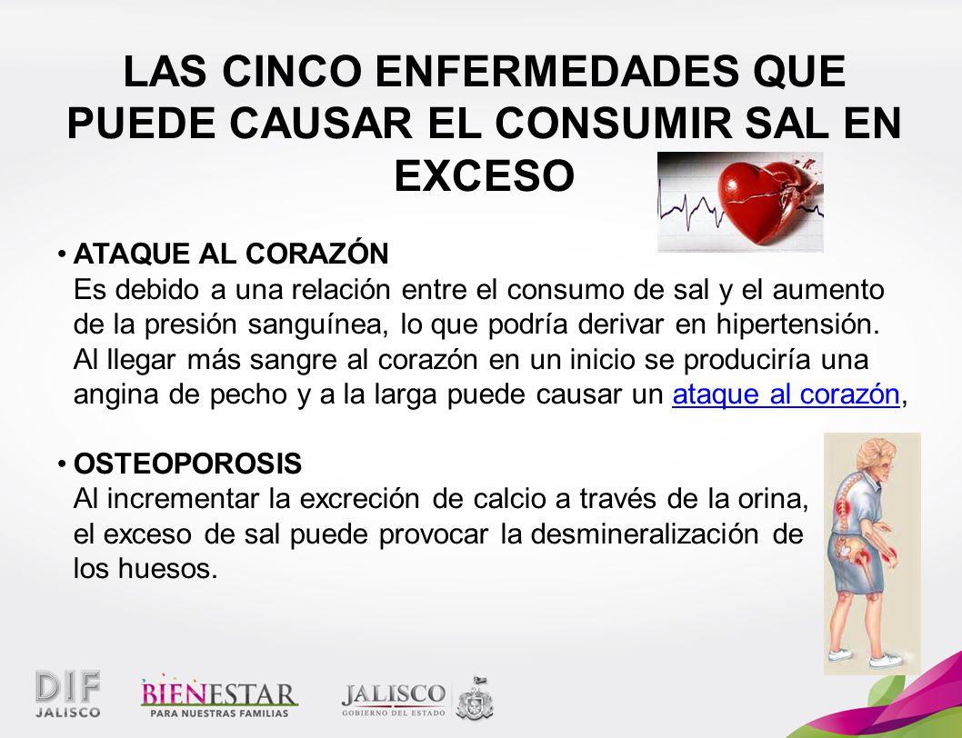 LAS CINCO ENFERMEDADES QUE PUEDE CAUSAR EL CONSUMIR SAL EN EXCESO