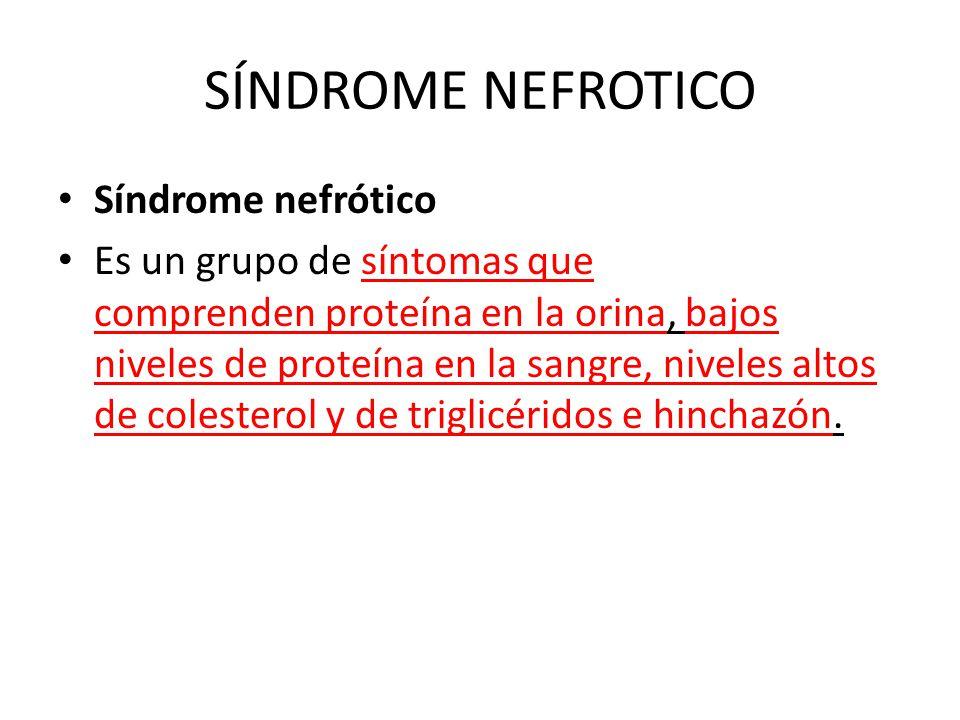 SÍNDROME NEFROTICO Síndrome nefrótico