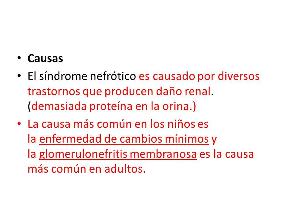 Causas El síndrome nefrótico es causado por diversos trastornos que producen daño renal. (demasiada proteína en la orina.)