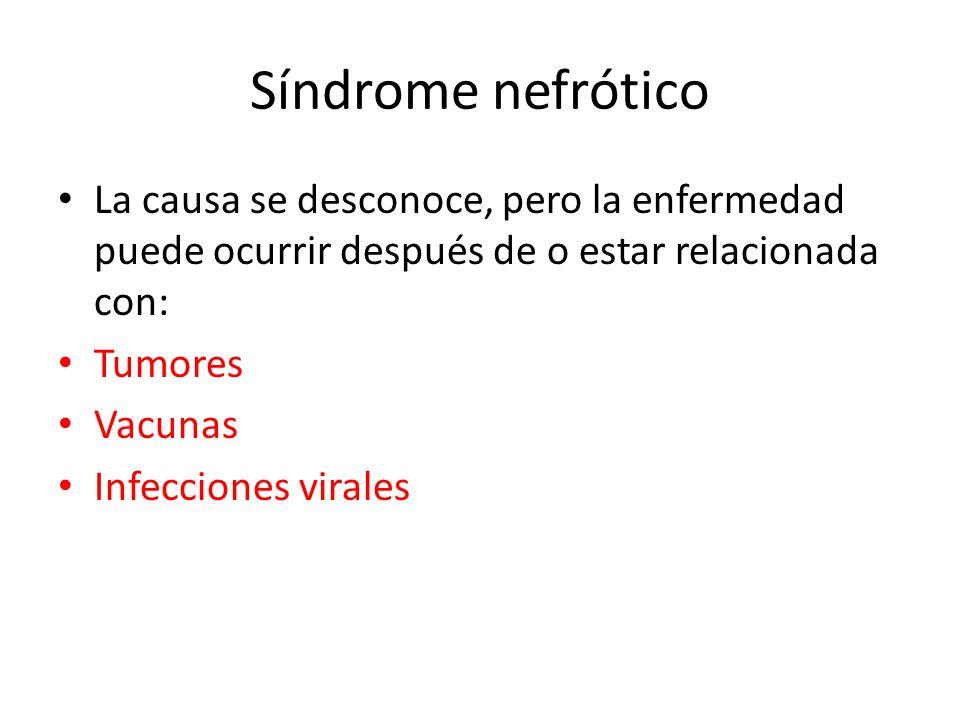 Síndrome nefrótico La causa se desconoce, pero la enfermedad puede ocurrir después de o estar relacionada con: