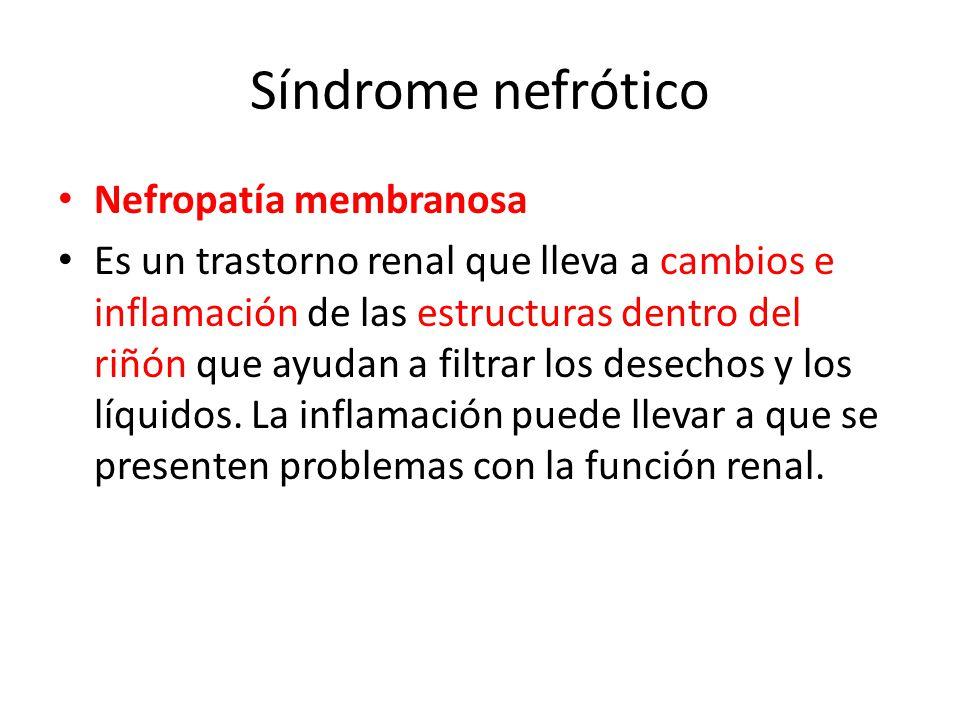 Síndrome nefrótico Nefropatía membranosa
