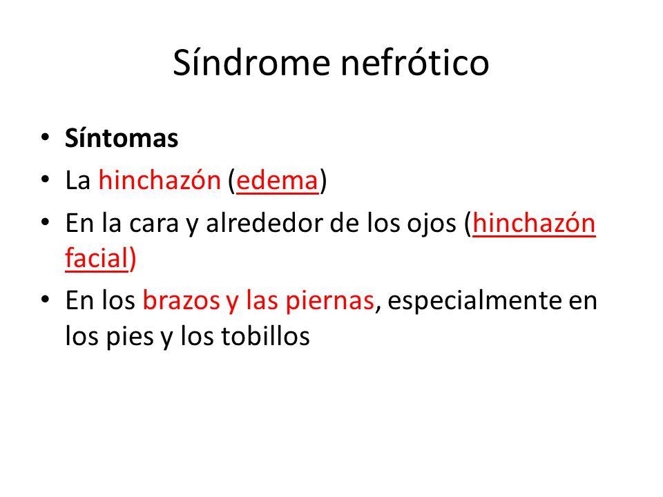 Síndrome nefrótico Síntomas La hinchazón (edema)