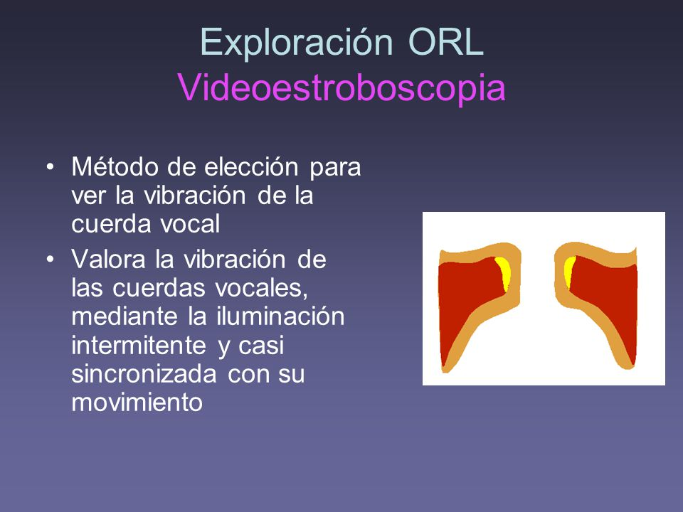 Exploración ORL Videoestroboscopia