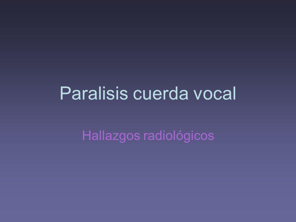 Paralisis cuerda vocal