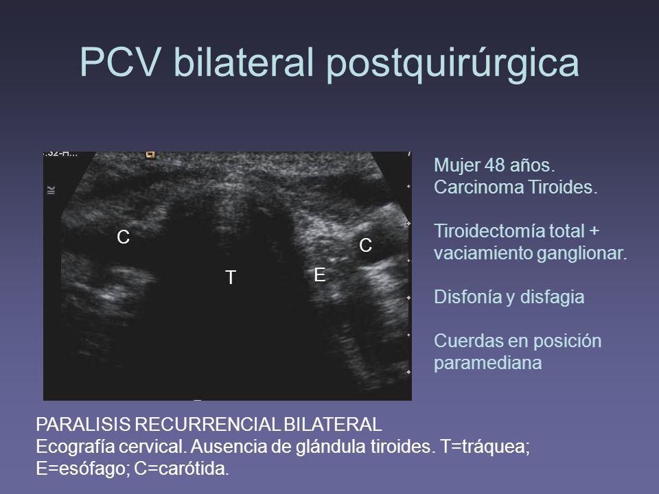 PCV bilateral postquirúrgica