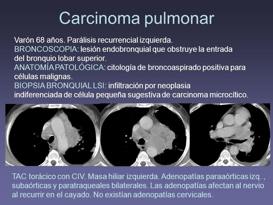 Carcinoma pulmonar Varón 68 años. Parálisis recurrencial izquierda.