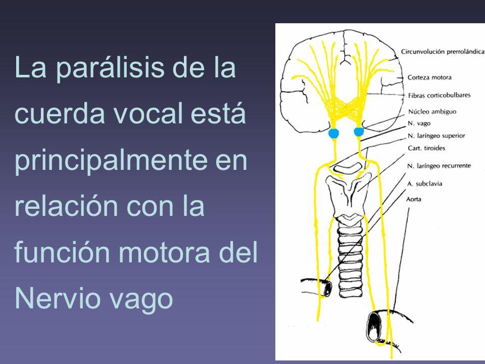 La parálisis de la cuerda vocal está principalmente en relación con la función motora del Nervio vago