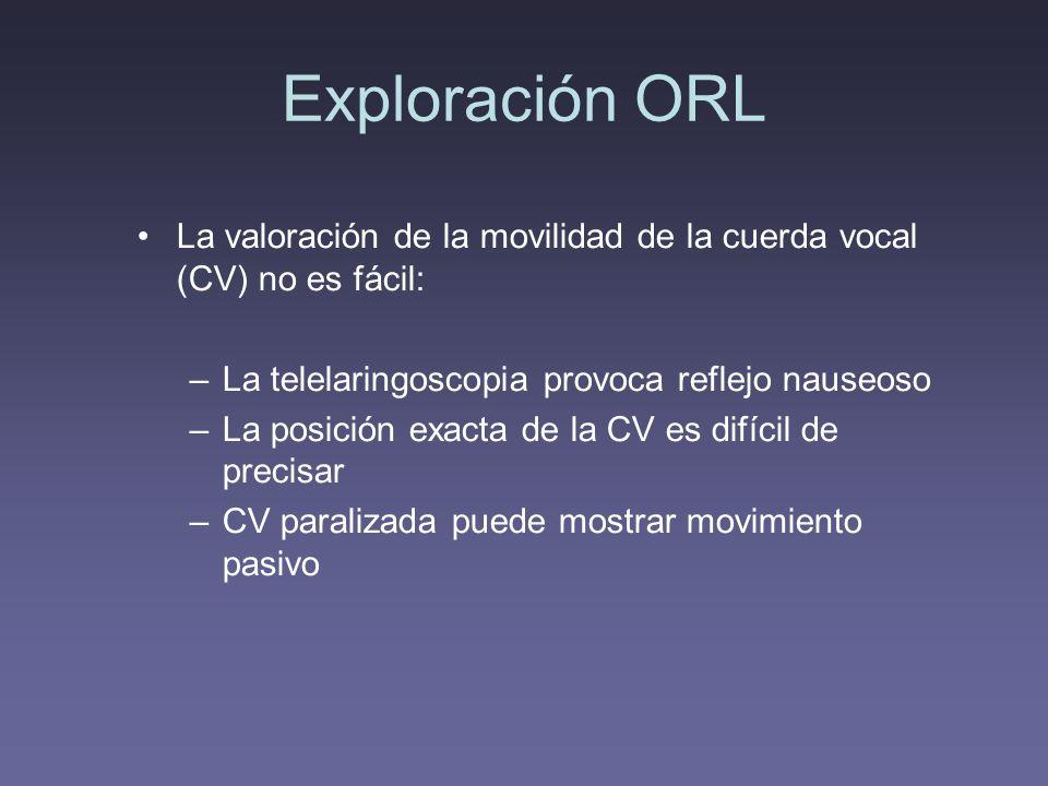 Exploración ORL La valoración de la movilidad de la cuerda vocal (CV) no es fácil: La telelaringoscopia provoca reflejo nauseoso.