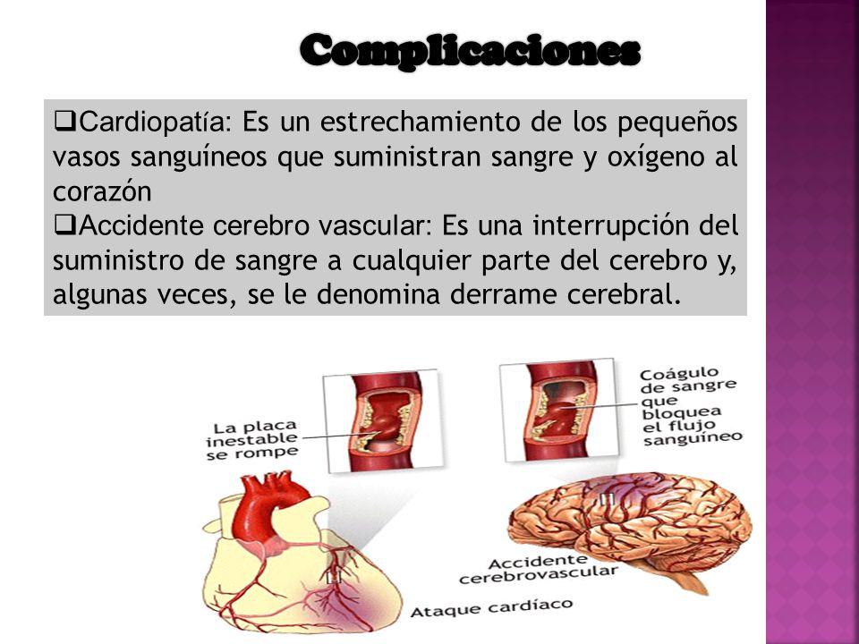 Complicaciones Cardiopatía: Es un estrechamiento de los pequeños vasos sanguíneos que suministran sangre y oxígeno al corazón.