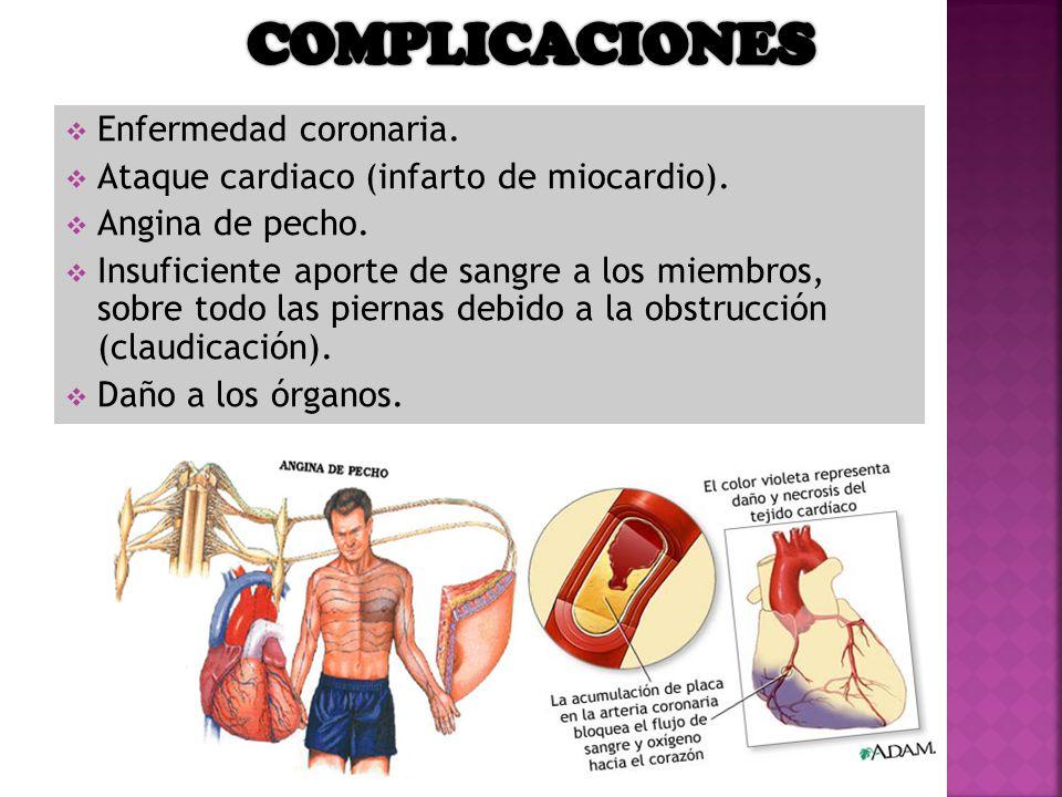 COMPLICACIONES Enfermedad coronaria.