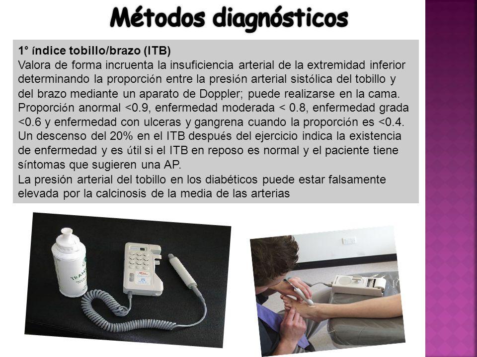 Métodos diagnósticos 1° índice tobillo/brazo (ITB)