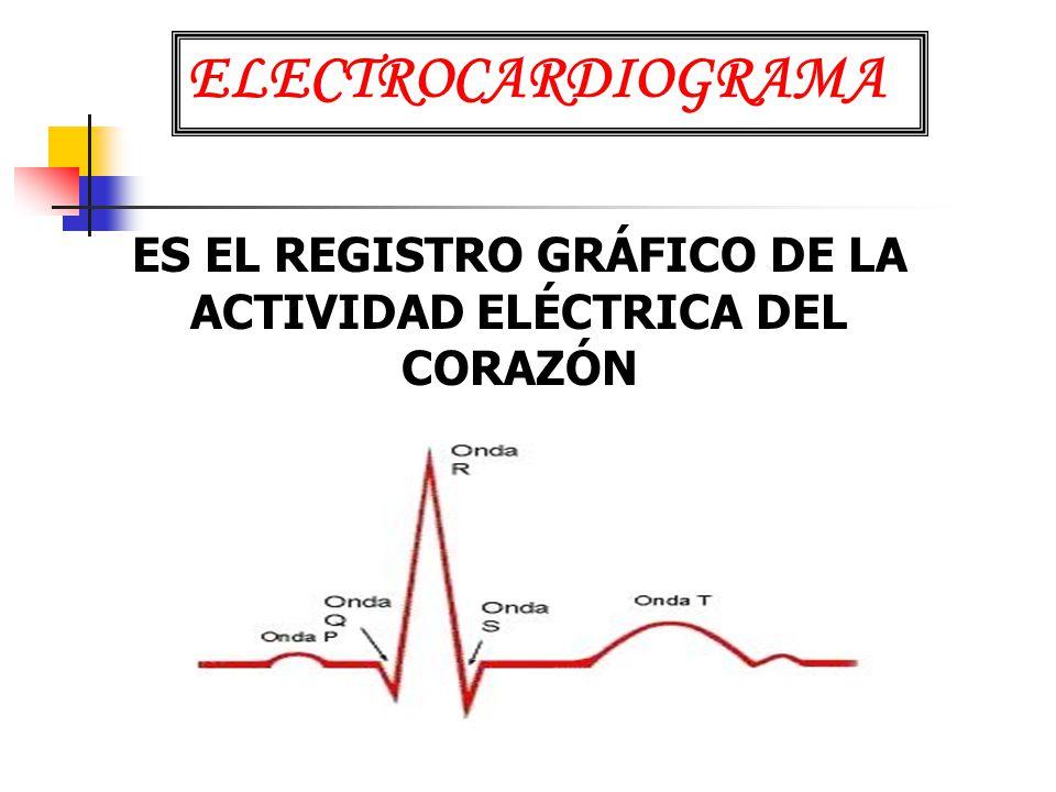 ES EL REGISTRO GRÁFICO DE LA ACTIVIDAD ELÉCTRICA DEL CORAZÓN