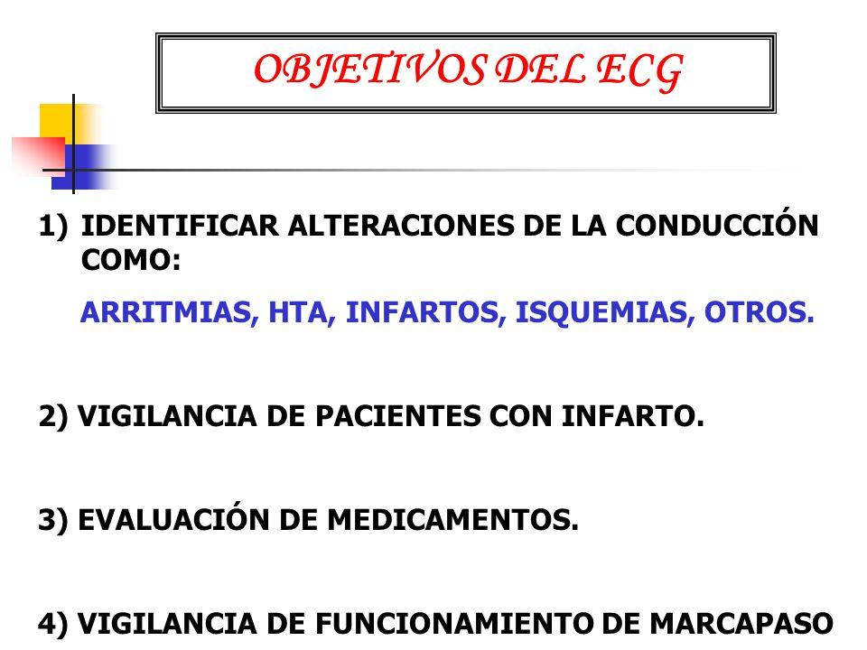 OBJETIVOS DEL ECG IDENTIFICAR ALTERACIONES DE LA CONDUCCIÓN COMO: