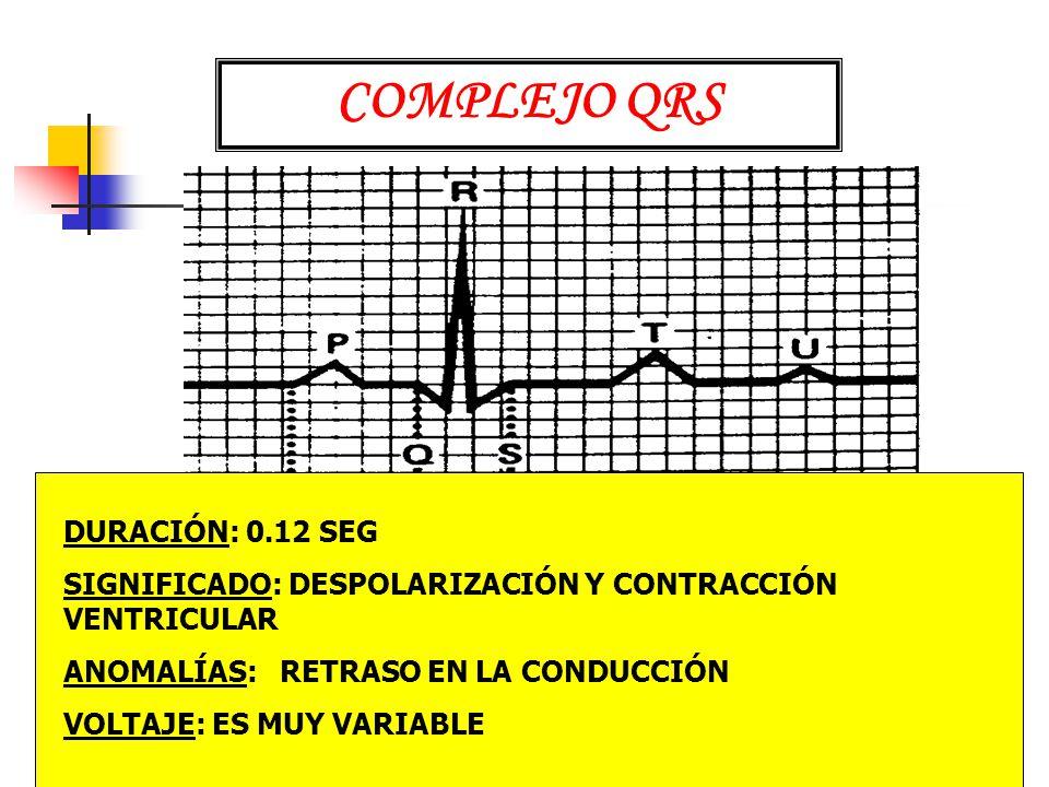 COMPLEJO QRS DURACIÓN: 0.12 SEG