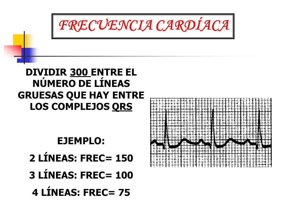 FRECUENCIA CARDÍACA DIVIDIR 300 ENTRE EL NÚMERO DE LÍNEAS GRUESAS QUE HAY ENTRE LOS COMPLEJOS QRS. EJEMPLO: