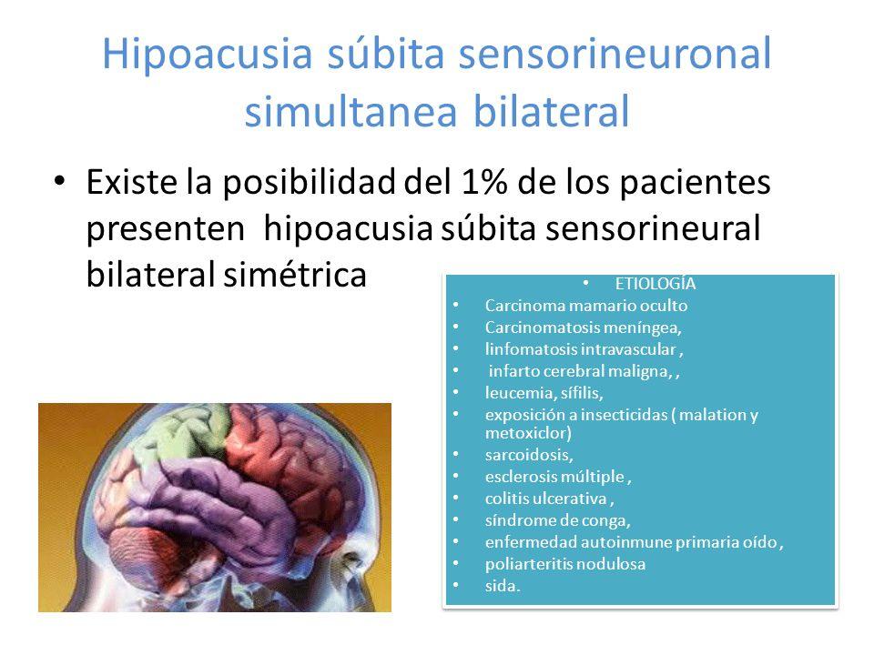 Hipoacusia súbita sensorineuronal simultanea bilateral