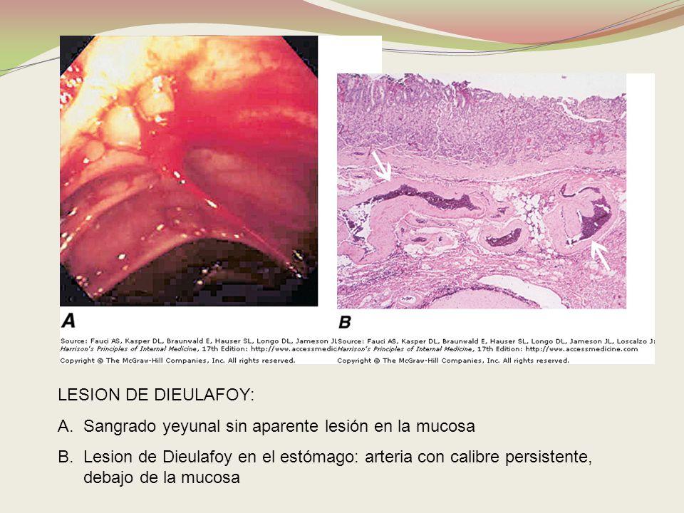LESION DE DIEULAFOY:Sangrado yeyunal sin aparente lesión en la mucosa.