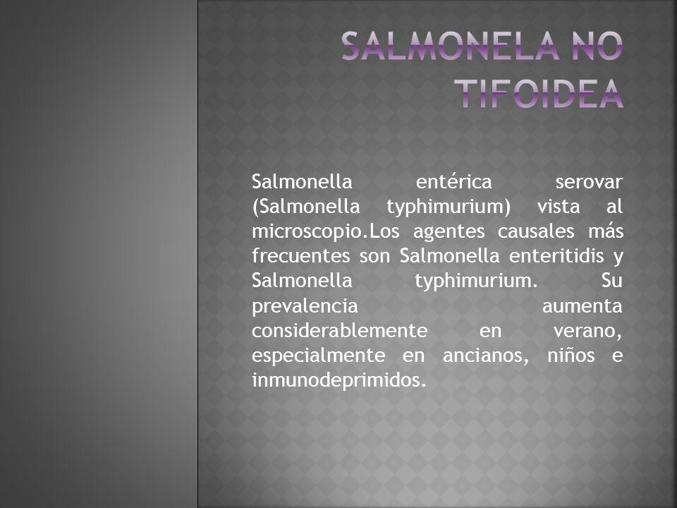 Salmonela no tifoidea