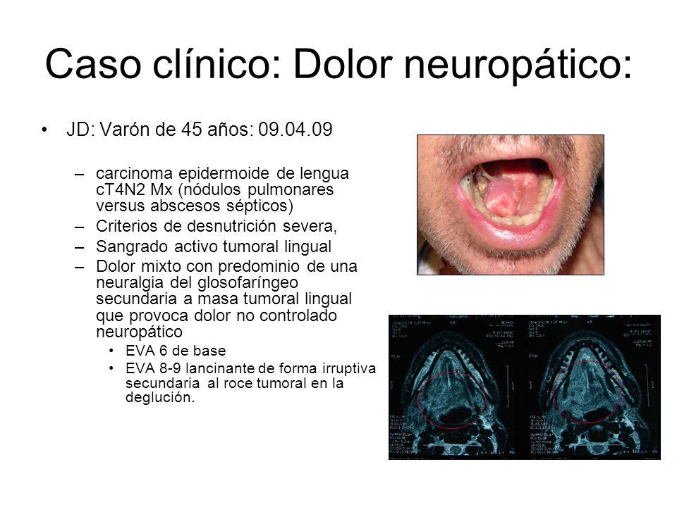 Caso clínico: Dolor neuropático: